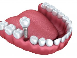 Dental Implants Brentwood TN