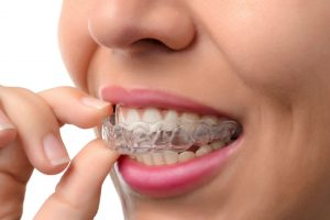 Invisalign Brentwood TN