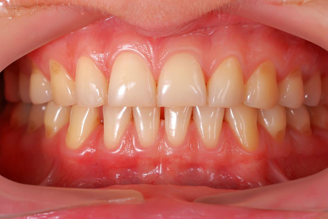 Gum Disease Brentwood TN