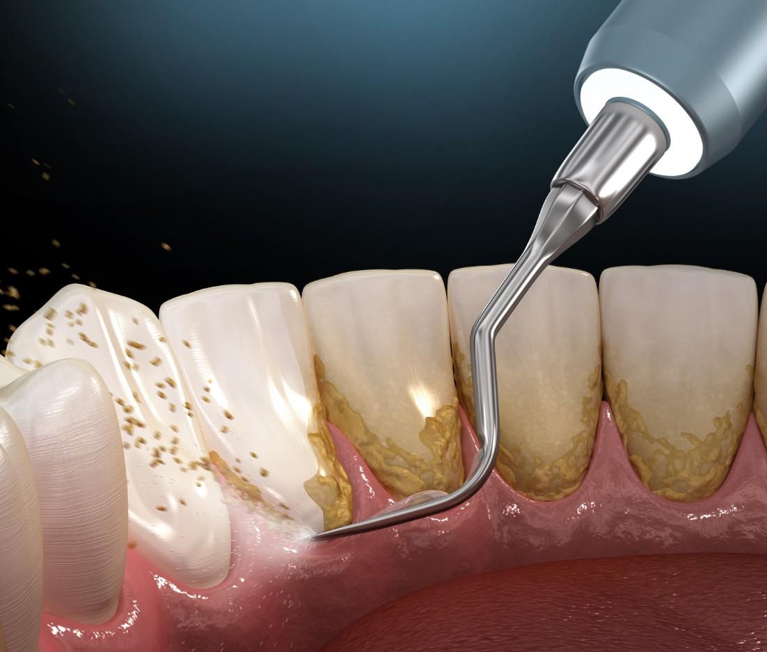 Dental Plaque Brentwood TN